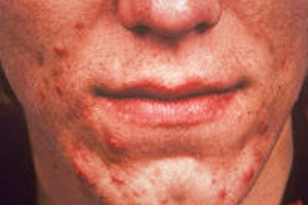 Acne Home Remedy