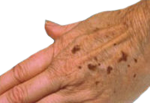 Brown Age Spots On Hands