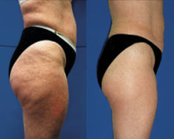 Cellulite Home Remedy