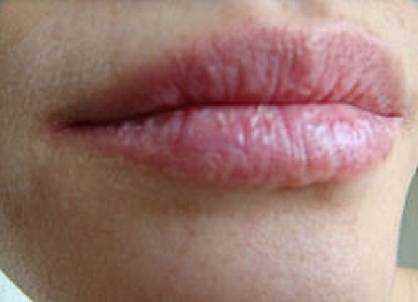 Chapped Lips Home Remedy