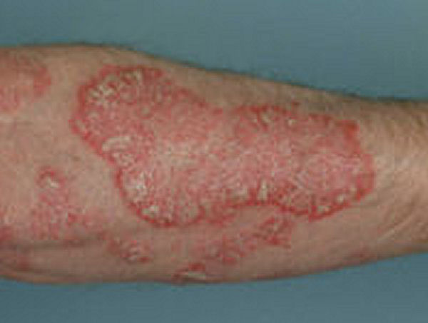 Psoriasis Home Remedy
