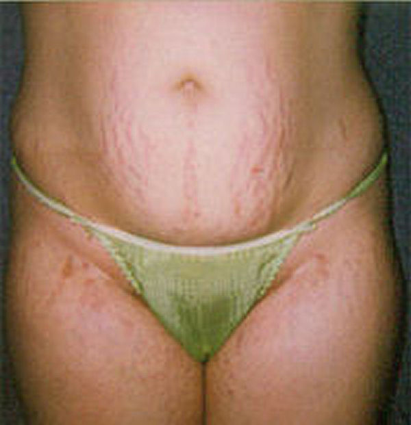 Stretch Marks Home Remedy
